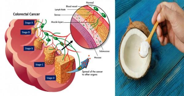 coconut-oil-colon-cancer12-600x315.jpg